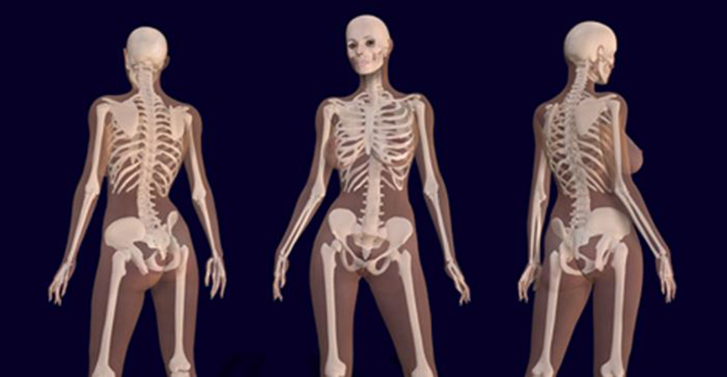 What Cannabis Does to Your Bones