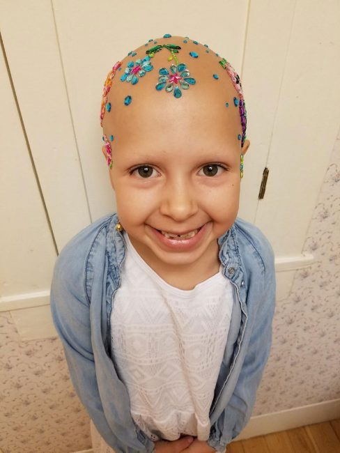 Little Girl With Alopecia Rocks School's 'Crazy Hair Day'