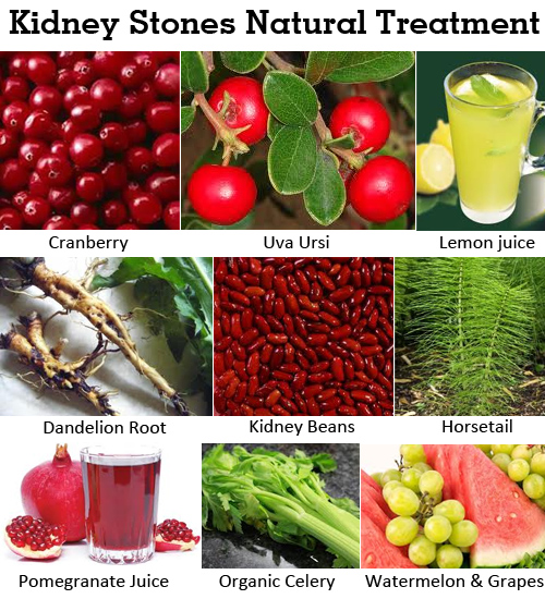 Miracle Natural Remedies For Kidney And Bladder Stones