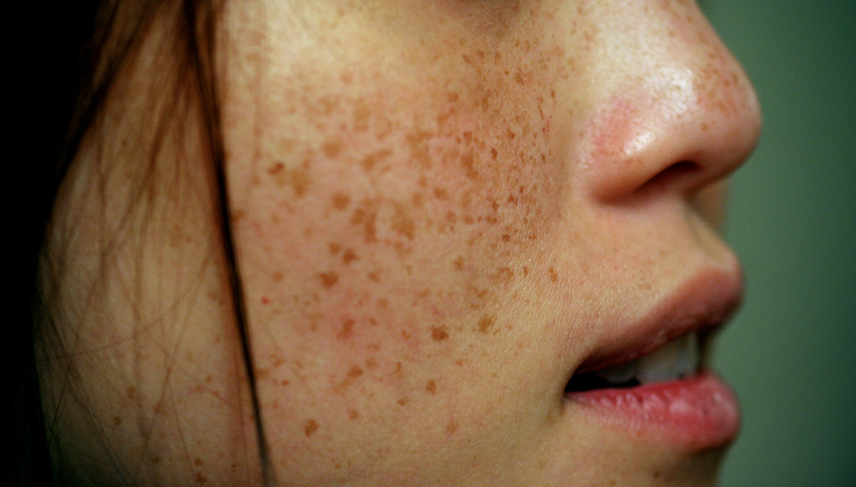 how to get rid of large freckles