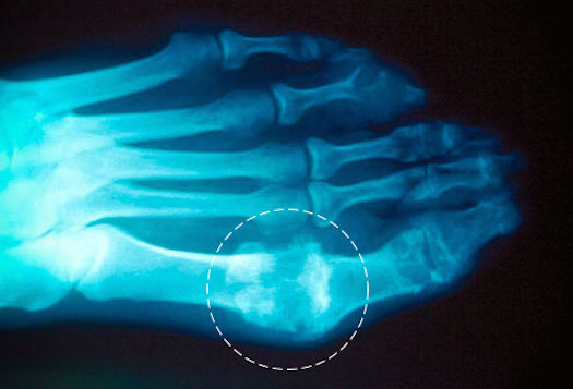How Can You Get Rid Of Gout Naturally