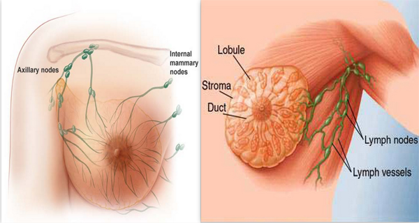 Breast Cancer Treatment Natural Remedies