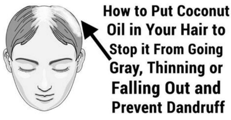 Image result for Home Remedies for Premature Graying of Hair