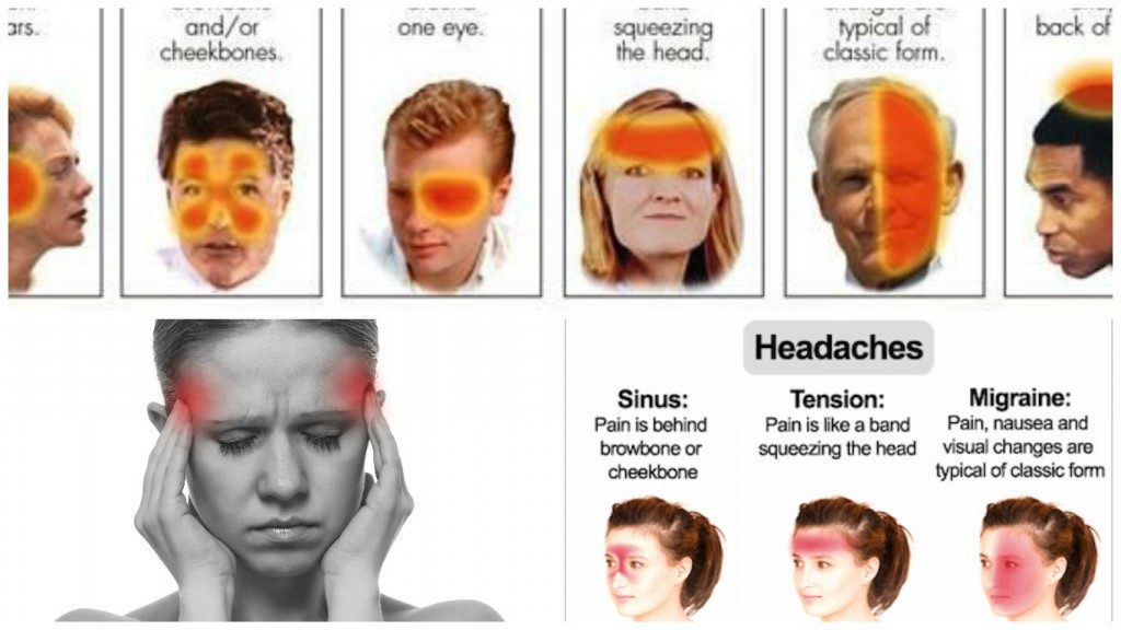 6 different types of headaches signs and how to recognize