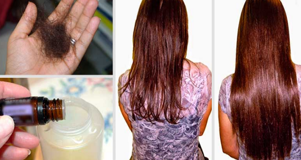 Hair Loss In Menopause Natural Remedies