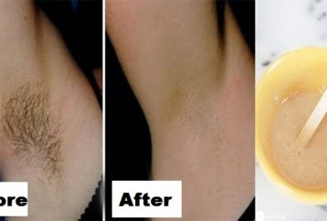 Natural Remedies For Underarm Pimples