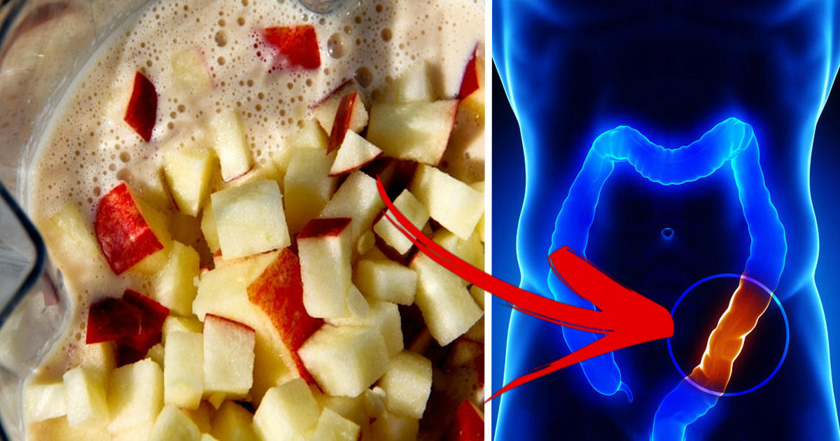 Apple Honey Mixture That Flushes Toxic Waste From Your Colon